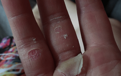 Climbing and bouldering hand care – how to tape flappers to the palm?
